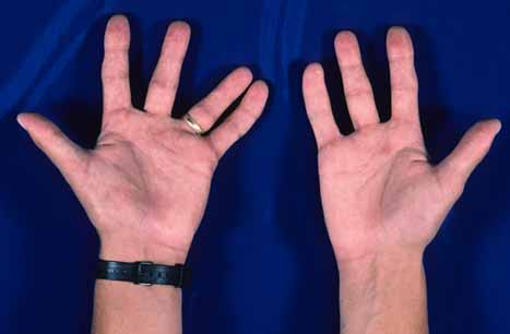 Photograph of the hands of someone with only four digits on their right hand