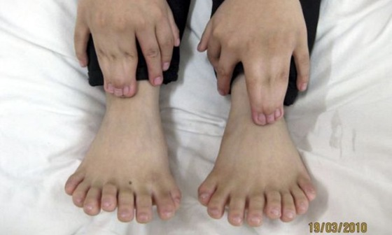 Photograph of the hands and feet of a Chinese boy with 31 digits, a world record