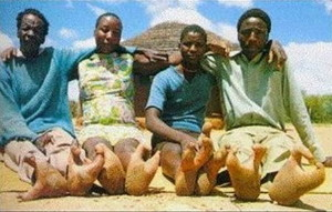 Photograph of members of the Vadoma Tribe from Zimbabwe, seated with their clawed feet facing the camera