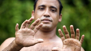 Photograph of Yoandri Hernandez Garrido who is displaying the six fingers on each of his hands